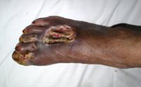 糖尿病足病変の症例1写真2