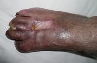 糖尿病足病変の症例1写真4
