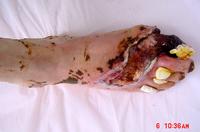 糖尿病足病変の症例2写真2