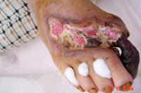 糖尿病足病変の症例2写真5