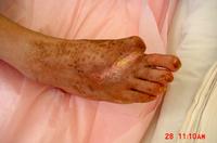 糖尿病足病変の症例2写真6