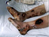 中西医結合治療による患部の改善例写真4