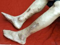 中西医結合治療による患部の改善例写真10